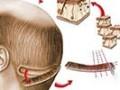 جراحی تکه ای - کلینیک تخصصی پوست و موی آرمان