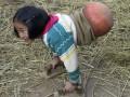 دختر معلولی که برای راه رفتن از توپ بسکتبال استفاده میکند - روژان